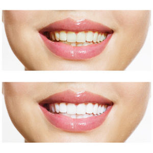 Lonsdale Place Dental - Teeth Whitening