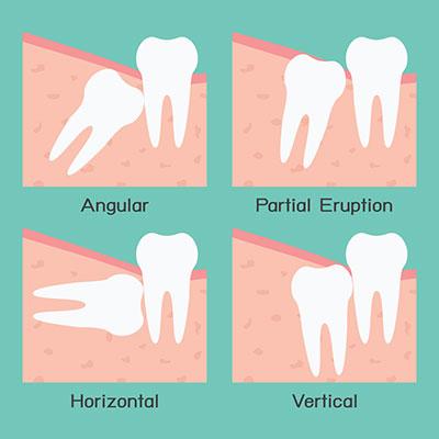 Lonsdale Place Dental - Oralsurgery
